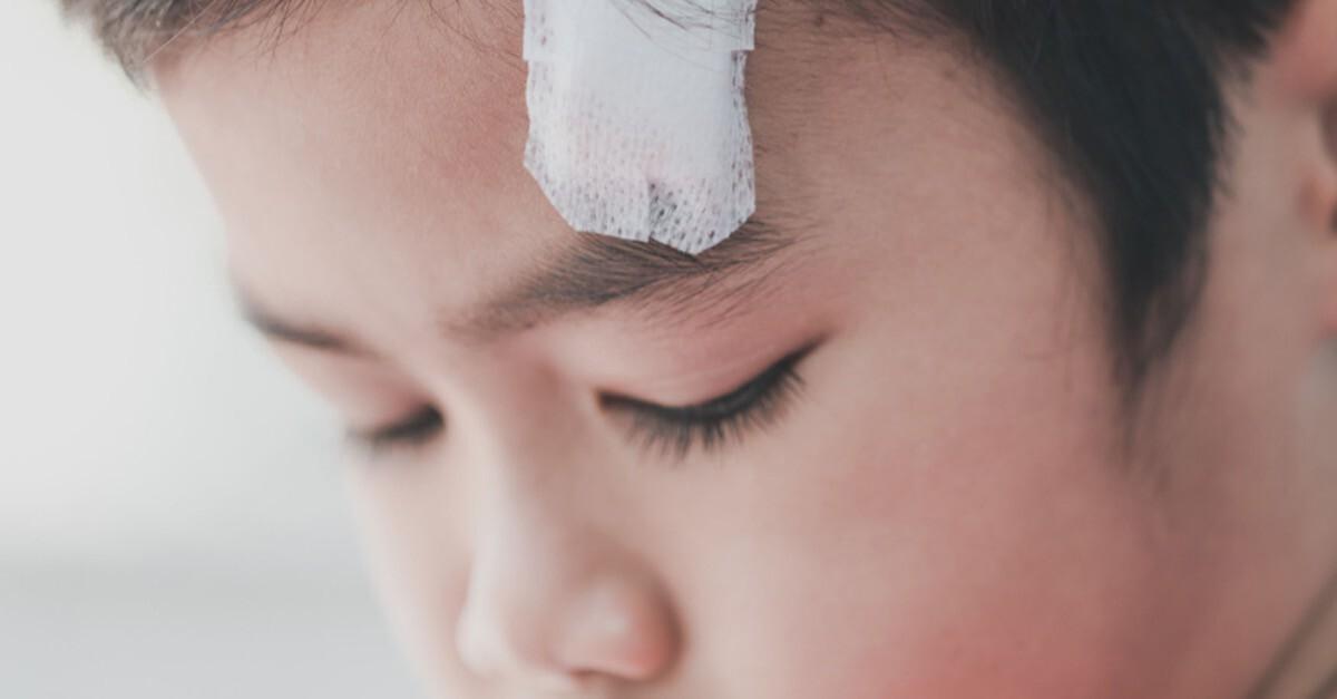 Kopfverletzung