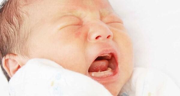 Heiserkeit beim Baby