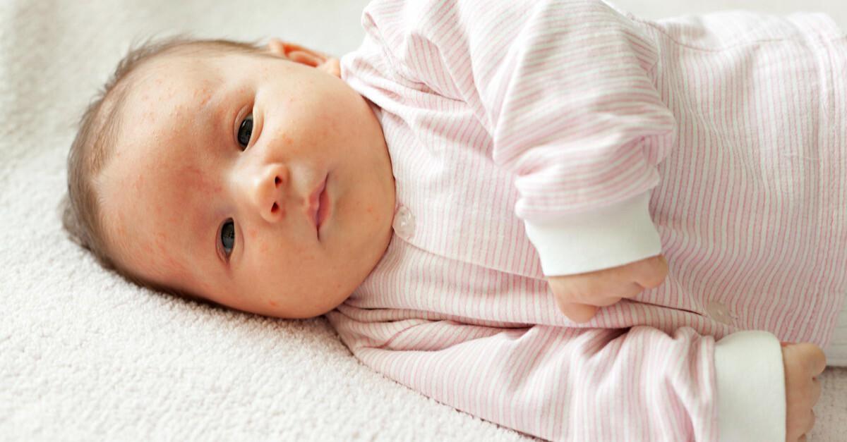 Neugeborenenakne Baby At