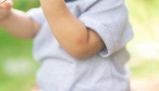 Was tun bei Insektenstichen bei Baby und Kleinkind?