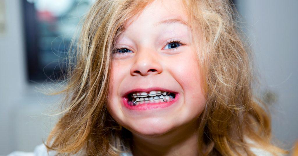Zahnspange bei Milchzähnen - Macht das Sinn?