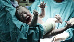 Wie sieht ein Neugeborenes aus?
