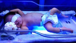 Phototherapie beim Neugeborenen