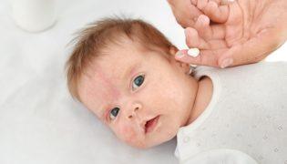 Allergien beim Baby