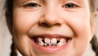Zahnspangen bei Milchzähnen sinnvoll?
